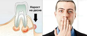 Нарост на дасне, болевые ощущения, неприятный запах изо рта - первые признаки гингивита