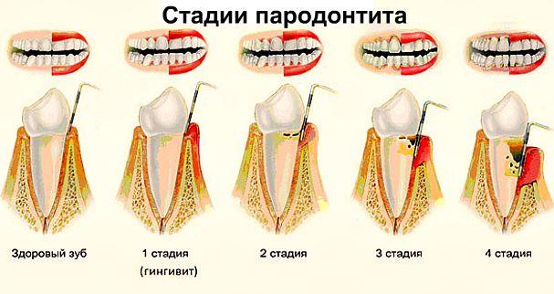 Если зуб качается можно ли его сохранить