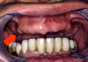 Пародонтит может привести к выпадению зубов