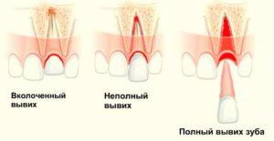 Виды вывихов зуба