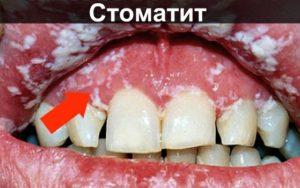 Стоматит на деснах фото