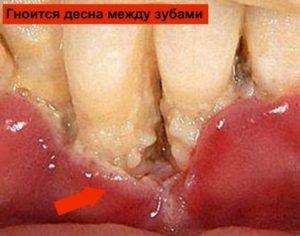Гноится десна между зубами: фото, возможные причины, варианты лечения