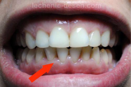 Как выглядят зубы при пародонтите