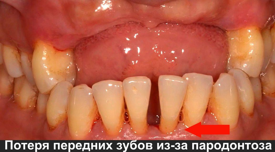Потеря передних зубов фото