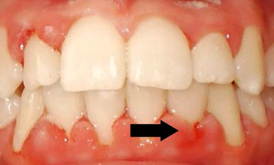 Чем лечить порез десны — Болезни полости рта