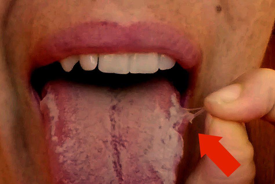 Шелушится язык фото