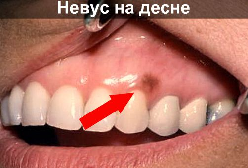 Невус на десне фото