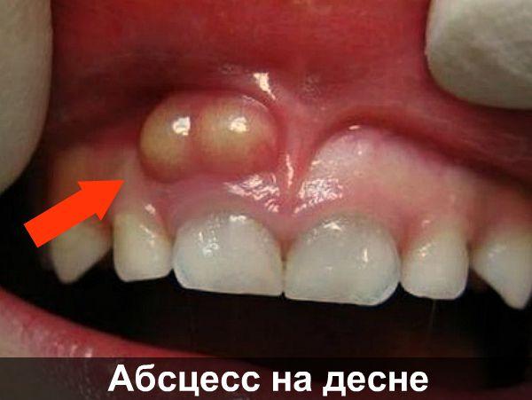 Абсцесс на десне фото