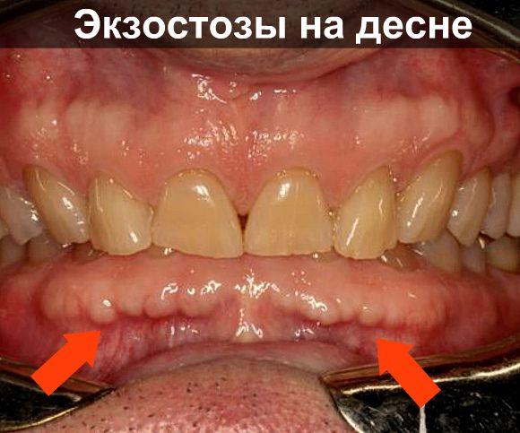 Экзостоз на десне фото