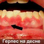 Причина запаха изо рта патогенные микробы