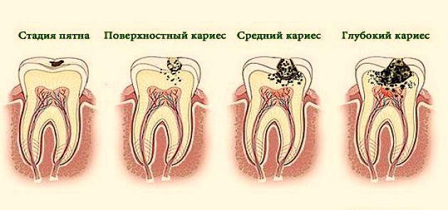 Пульпит в зубе: фото, причины возникновения, симптомы, лечение