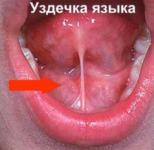 Пластика уздечки языка: показания, методы, фото
