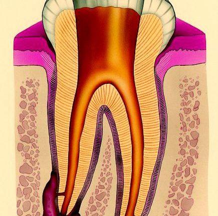 Зубная гранулема