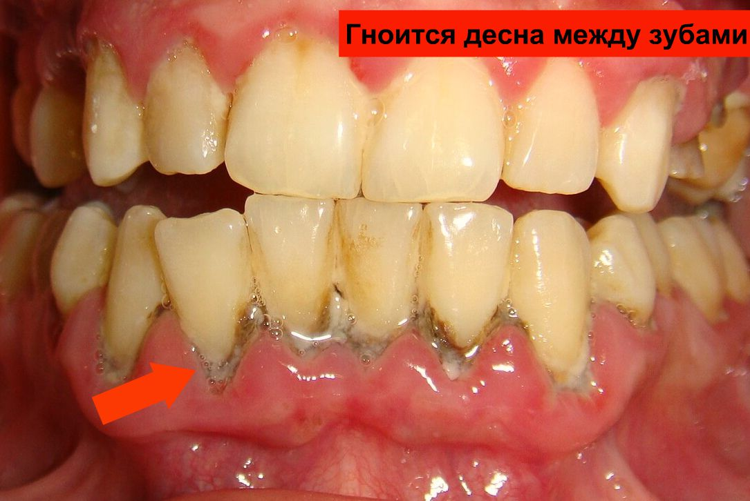 Гноится десна между зубами фото