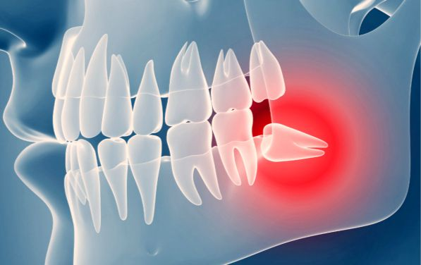 Где растет зуб мудрости сверху или снизу — Болезни полости рта
