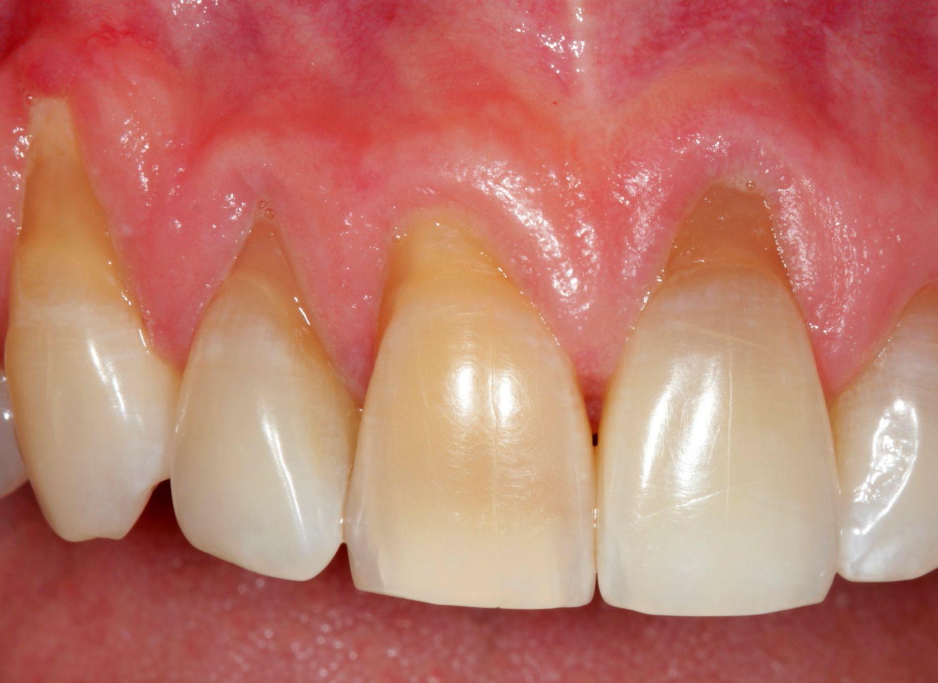 оголение корней зубов фото
